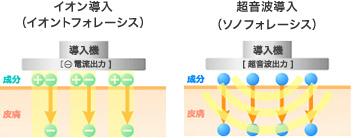 「超音波導入法」と「イオン導入法」