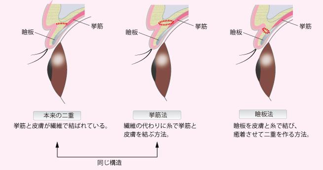 挙筋法・瞼板法